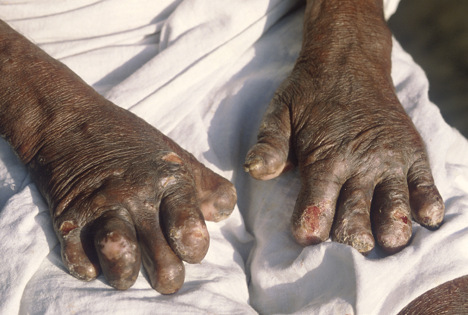 Leprosy_deformities_hands.jpg
